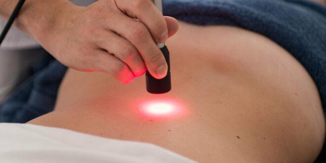 Laserterapia, curarsi con le radiazioni elettromagnetiche